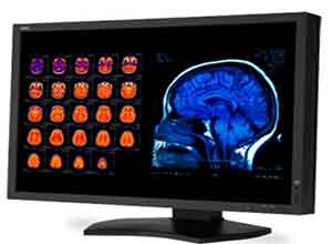 NEC 30 Inch Color 4-Megapixel Widescreen Medical Diagnostic Monitor MD301C4