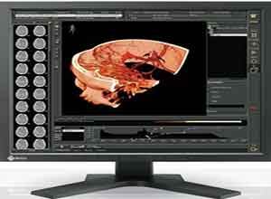 Eizo RadiForce 19 Inch Color LCD Monitor RS110