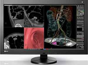 Eizo RadiForce RX840 8MP 92cm 36.4 Inch Color LCD Monitor